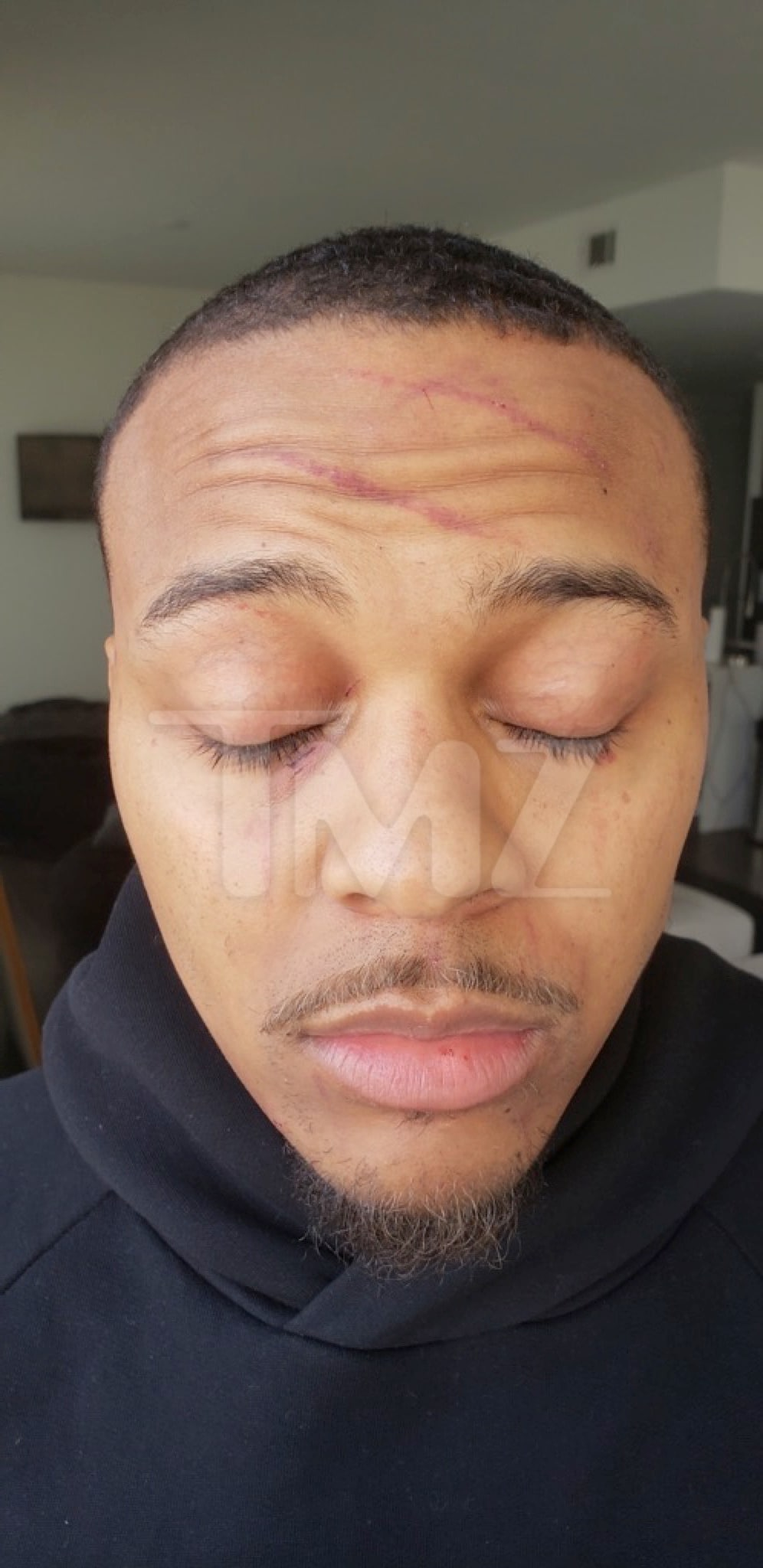 Bow Wow Domestic Violence Injuries