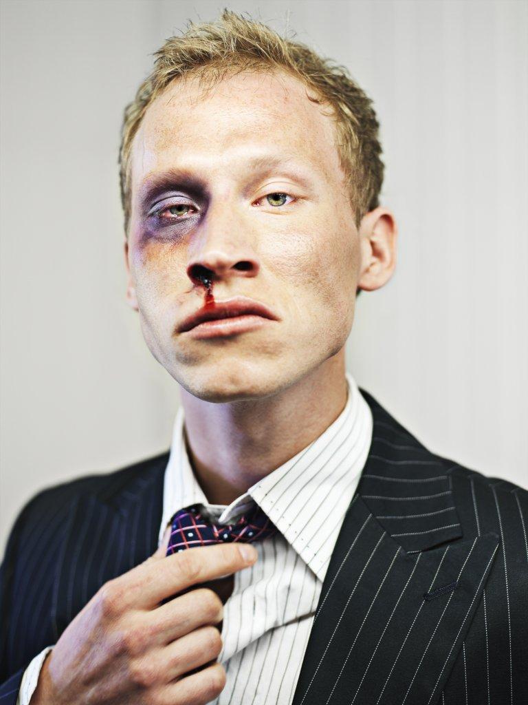 Stock market broker after a beating